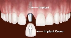 Copy of Dental-Implants.jpg