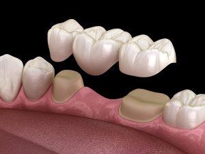 dental-bridge-vs-dental-implant.jpeg